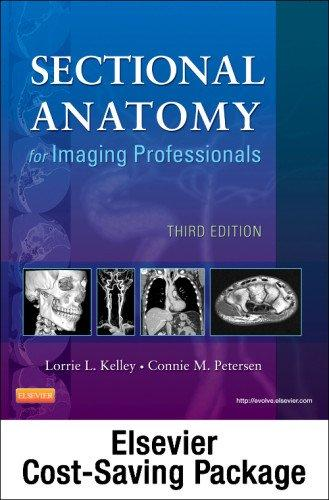 Mosby's Radiography Online for Sectional Anatomy for Imaging Professionals (User Guide, Access Code, Textbook, and Workbook Package), 3e