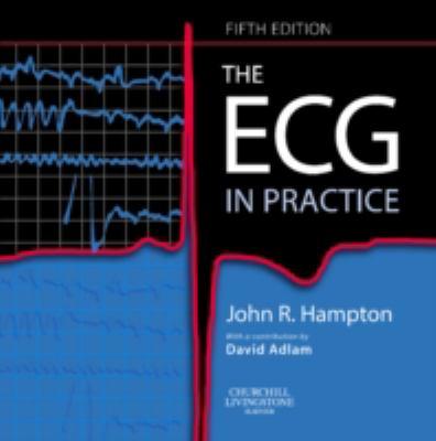 ECG in Practice