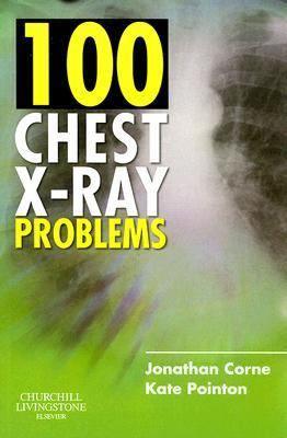 100 Chest X-ray Problems