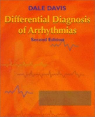 Differential Diagnosis of Arrhythmias