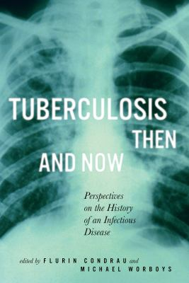 Tuberculosis Then and Now: Perspectives on the History of an Infectious Disease (Mcgill-Queen's/Associated Medical Services Studies in the History of Medicine, Health, and Society)