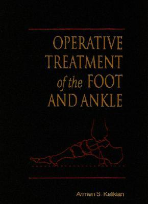 Operative Treatment of the Foot and Ankle