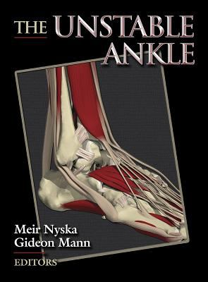 Unstable Ankle