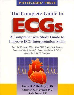 Complete Guide to ECGs: A Comprehensive Study Guide to Improve ECG Interpretation Skills