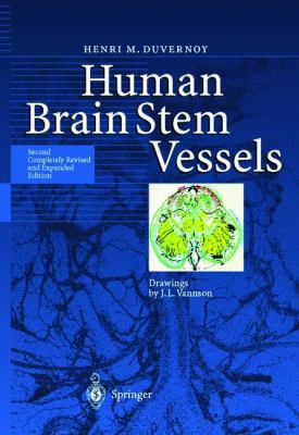 Human Brain Stem Vessels Including the Pineal Gland and Information on Brain Stem Infarction