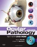 Ocular Pathology