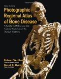 Photographic Regional Atlas of Bone Disease : A Guide to Pathologic and Normal Variation in ...