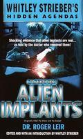 Casebook Alien Implants