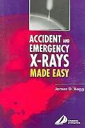 Accident And Emergency X-rays Made Easy