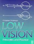Low Vision Principles and Practice