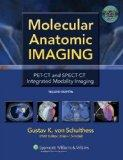 Molecular Anatomic Imaging: PET-CT and SPECT-CT Integrated Modality Imaging