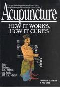 Acupuncture How It Works, How It Cures
