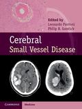 Cerebral Small Vessel Disease