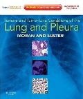 Tumors and Tumor-like Conditions of the Lung and Pleura: Expert Consult: Online and Print