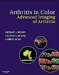 Arthritis in Color: Advanced Imaging of Arthritis