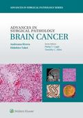 Brain Cancer - Advance in Surgical Pathology