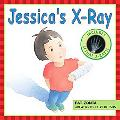 Jessica's X-Ray Includes Actual X-Rays!