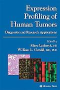 Expression Profiling of Human Tumors Diagnostic and Research Applications