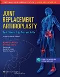 Joint Replacement Arthroplasty Vol. 2 : Basic Science, Hip, Knee, and Ankle