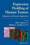 Expression Profiling of Human Tumors: Diagnostic and Research Applications