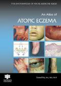 Atlas of Atopic Eczema