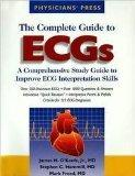 The Complete Guide to ECGs: A Comprehensive Study Guide to Improve ECG Interpretation Skills...