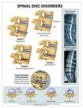 Spinal Disc Disorders Wall Chart - Peel and Stick