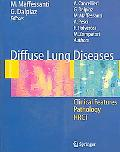 Diffuse Lung Diseases Clinical Features, Pathology, Hrct