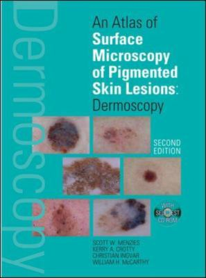 Atlas of Surface Microscopy of Pigmented Skin Lesions Dermoscopy