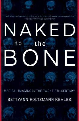 Naked to the Bone Medical Imaging in the Twentieth Century