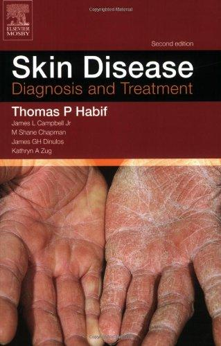 Skin Disease: Diagnosis and Treament