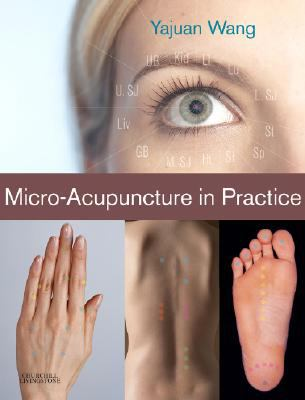 Micro-Acupuncture in Practice