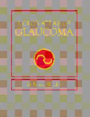 Color Atlas of Glaucoma