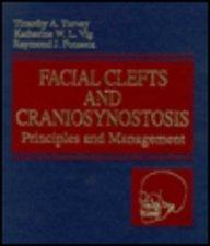 Facial Clefts and Craniosynostosis: Principles and Management
