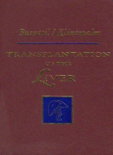 Transplantation of the Liver, 1e