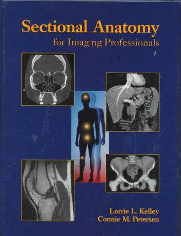 Sectional Anatomy for Imaging Professionals, 1e