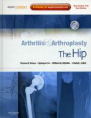 Arthritis and Arthroplasty: The Hip: Expert Consult - Online, Print and DVD