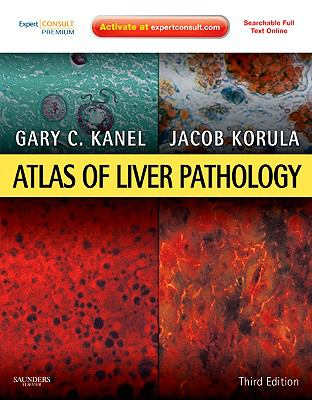 Atlas of Liver Pathology : Differential Diagnosis and Liver Biopsy Interpretation