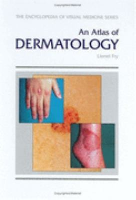 Atlas of Dermatology