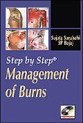 Step by Step Management of Burns