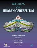 Mri Atlas of the Human Cerebellum