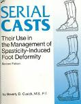 Serial Casts Their Use in the Management of Spasticity-Induced Foot Deformity