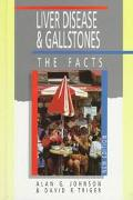 Liver Disease and Gallstones: The Facts - Alan G. Johnson - Hardcover - 2nd ed