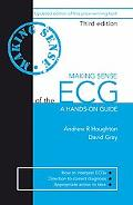 Making Sense of the Ecg A Hands-On Guide