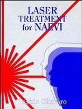 Laser Treatment for Naevi