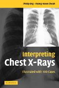 Interpreting Chest X-rays Illustrated With 100 Cases