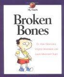 Broken Bones (My Health Series)