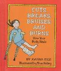 Cuts, Breaks, Bruises, and Burns: How Your Body Heals - Beverly Collins - Hardcover - 1st ed