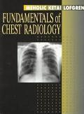 Fundamentals of Chest Radiology