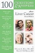 100 Questions and Answers about Liver Cancer